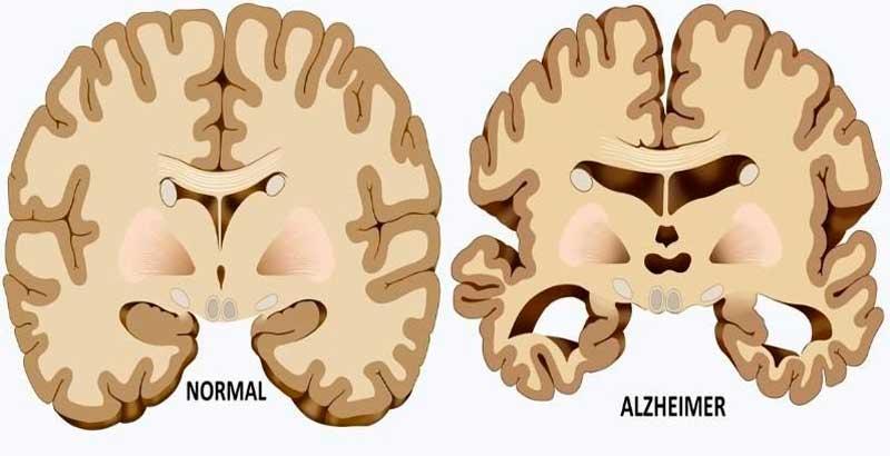 Alzheimer Beyni