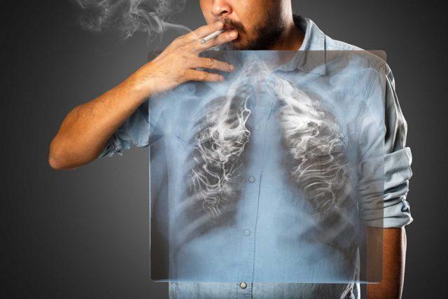 Akciğer Kanseri Nedir, Nasıl Ortaya Çıkar