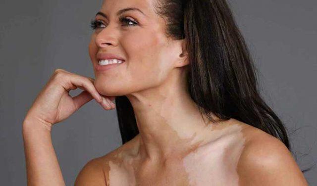 Vitiligo (Ala) Hastalığı